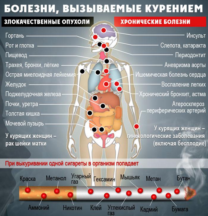 Болезни вызванные курением