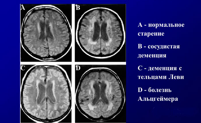 Нейровизуализация при когнитивных нарушениях