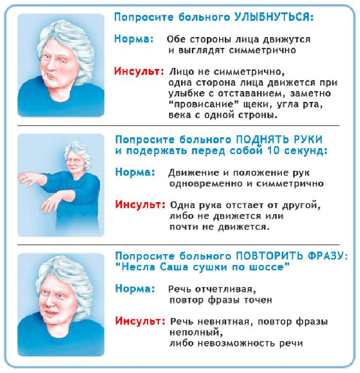 Тесты на инсульт