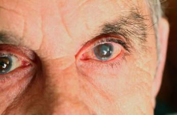 Глаукома у пожилых