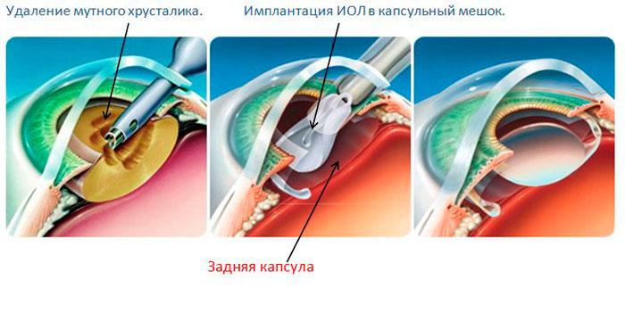Процесс ультразвуковой факоэмульсификации