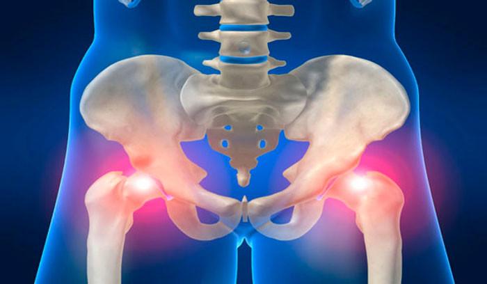 Лечение народными средствами коксартроза тазобедренного сустава