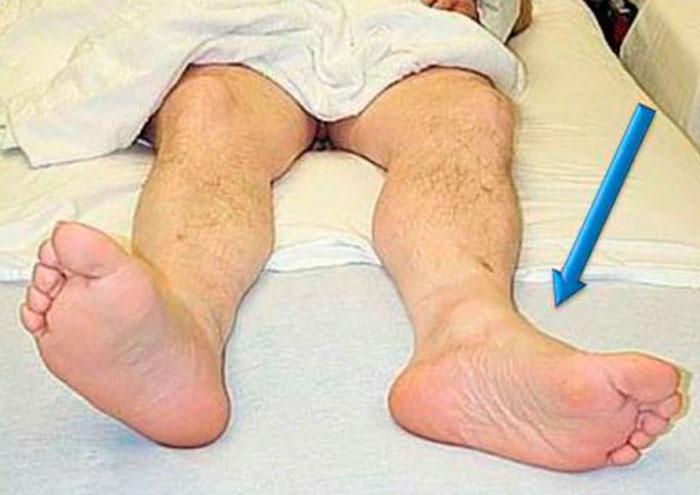 Ротация стопы наружу при переломе шейки бедренной кости