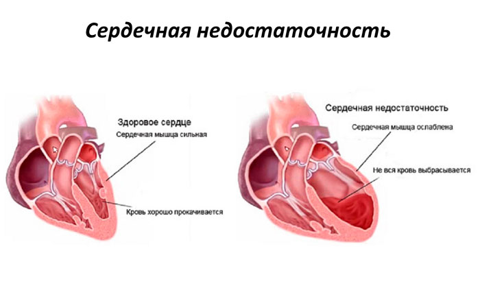 Здоровое сердце и сердце с ХСН