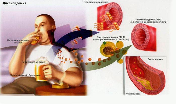 Факторы риска появления ишемической болезни сердца