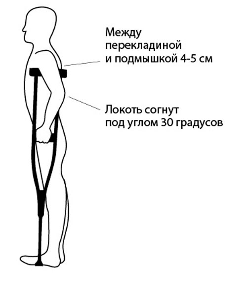 Инструкция по подбору подмышечных костылей