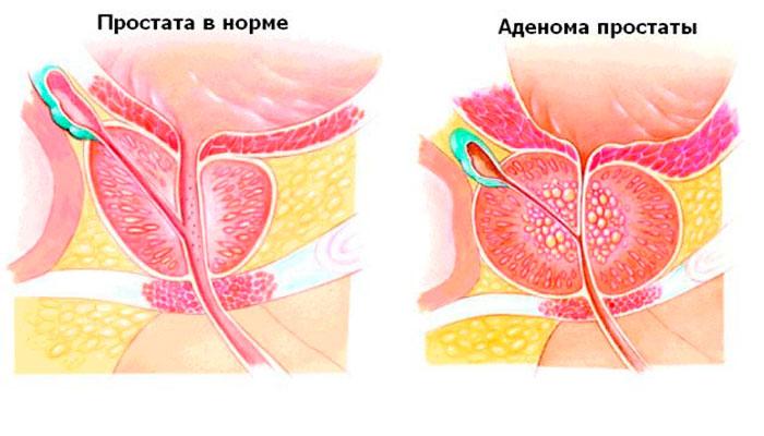 Лечение простатита и бесплодия