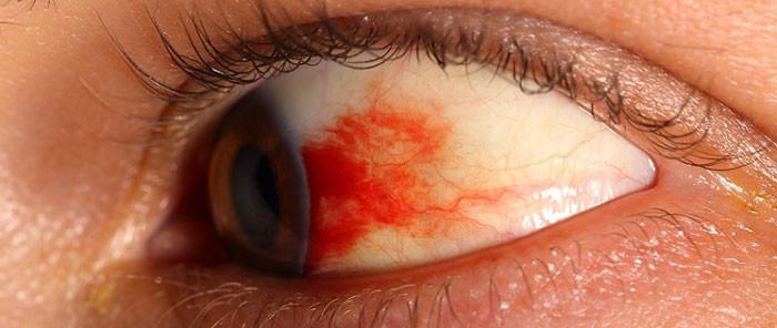 Диабетическая ретинопатия симптомы