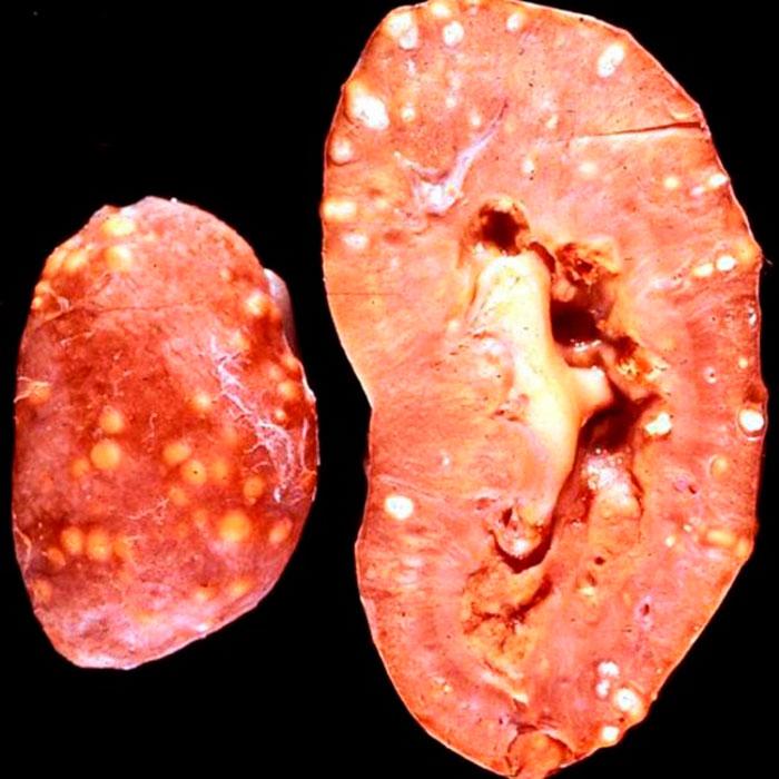 Что нужно первое сделать при диагностировании туберкулеза почки