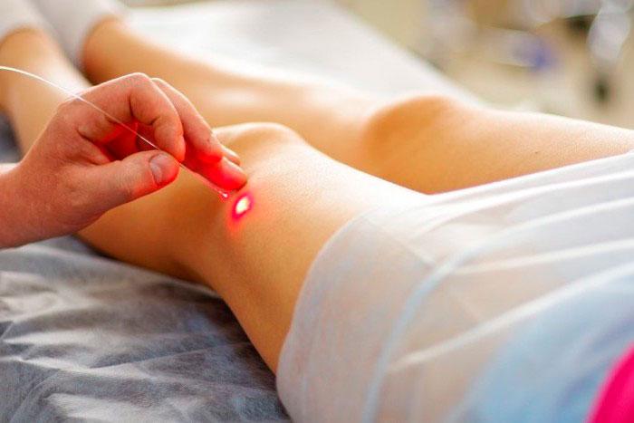 Лазерная терапия при варикозе