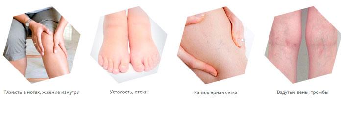 Симптомы варикоза вен