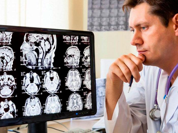 Рентген при сотрясении головного