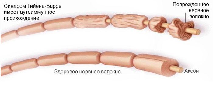 Нервное волокно при синдроме Гийена-Барре
