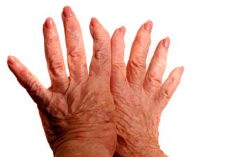 Склеродермия, симптомы и лечение