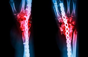Воспаление костной ткани, симптомы и лечение