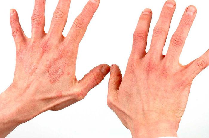 Псориаз на руках, кистях, пальцах - первые признаки заболевания