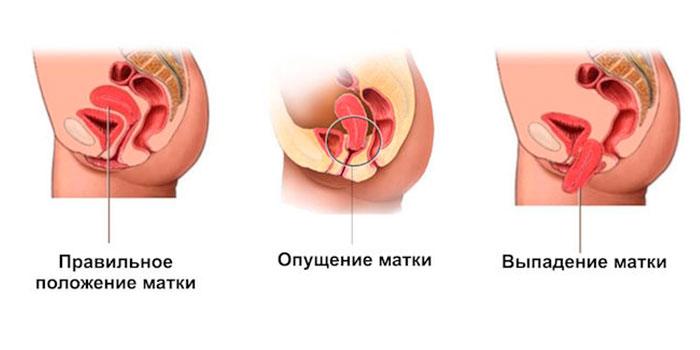 Стадии выпадения матки