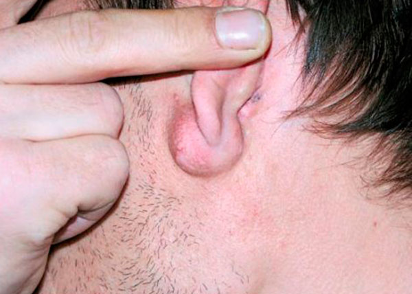 Атерома мочки уха - причины и лечение неприятной болезни