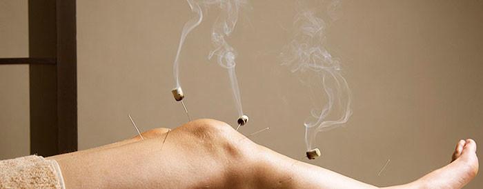 Мокса терапия - древнейший китайский метод лечения