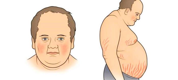 Синдром Кушинга: причины развития болезни, симптомы и лечение