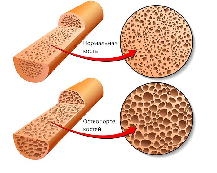 Здоровая кость и кость пораженная остеопорозом
