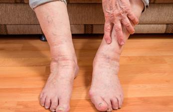 Причины отека ног у пожилых людей: как лечить