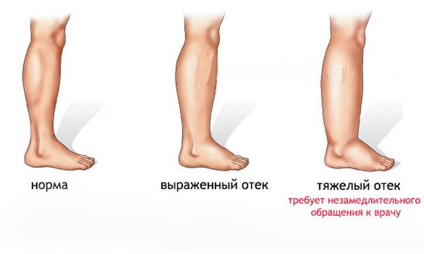 Стадии развития отека ног