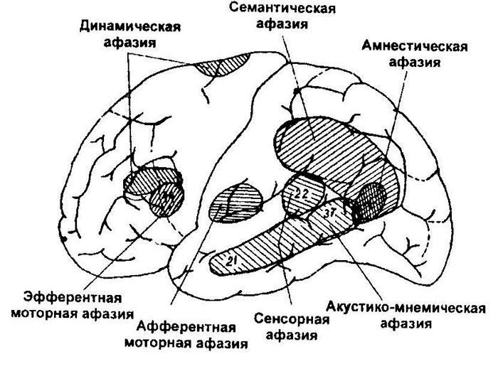 Пораженные участки коры головного мозга при афазии