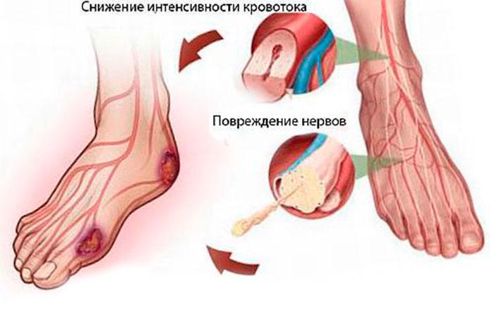 Снижение уровня кровотока в нижних конечностях