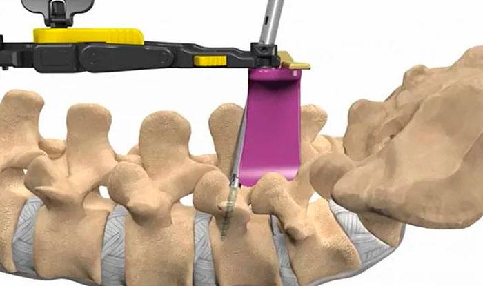 Операция по исправлению смещенных позвонков при спондилолистезе