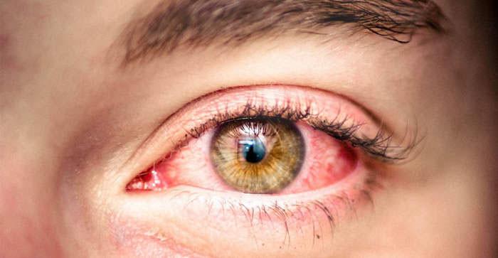 Аллергия глаза: причины и лечение