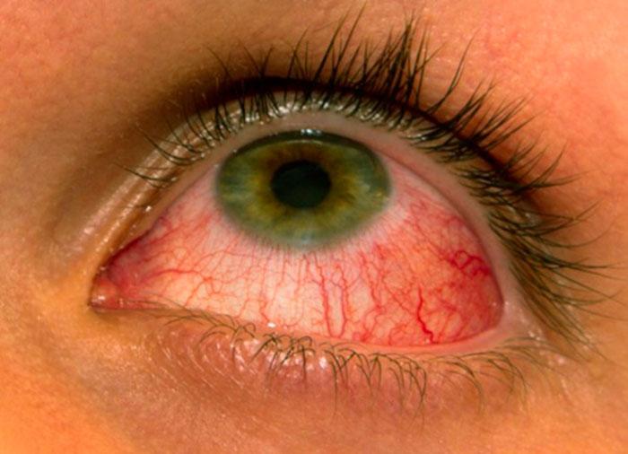 Конъюнктивит - одна из форм аллергии
