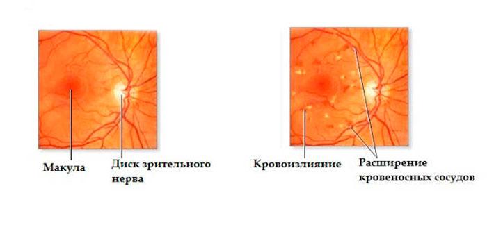 Здоровая глазная сетчатка и ангиопатия сетчатки по гипертоническому типу