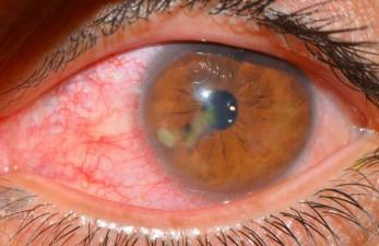 Кератит глаза: симптомы и лечение