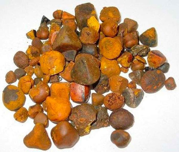 Камни в желчном пузыре при холецистите