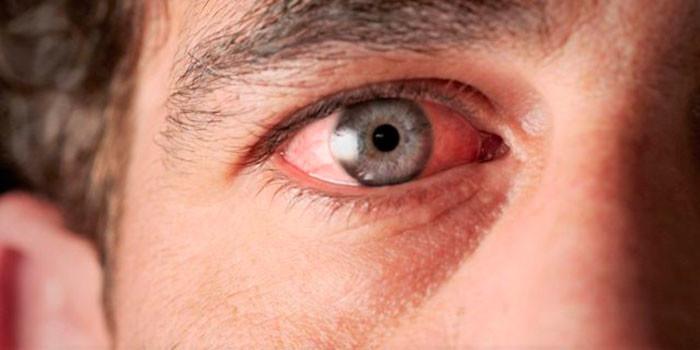 Конъюнктивит у пожилых людей - опасное глазное заболевание