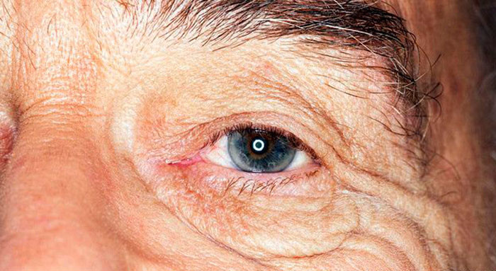 Отслоение сетчатки в пожилом возрасте - как вовремя распознать недуг?