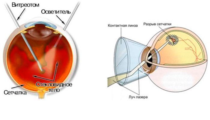 Эндовитреальные хирургические методы лечения отслоений сетчатки