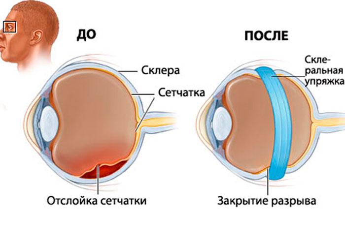 Экстрасклеральное пломбирование разрыва сетчатки