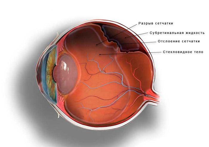 Отслоение сетчатки - в разрезе глазного яблока