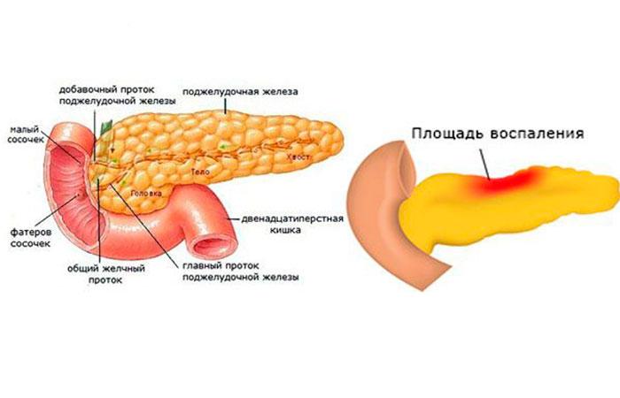 Здоровая поджелудочная железа и железа пораженная панкреатитом