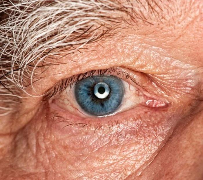 Вторичная глаукома: причины и лечение