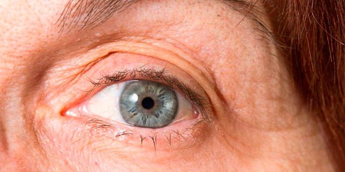 Замена хрусталика глаза при катаракте: этапы процедуры