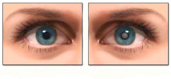 Здоровый глаз и глаз пораженный катарактой