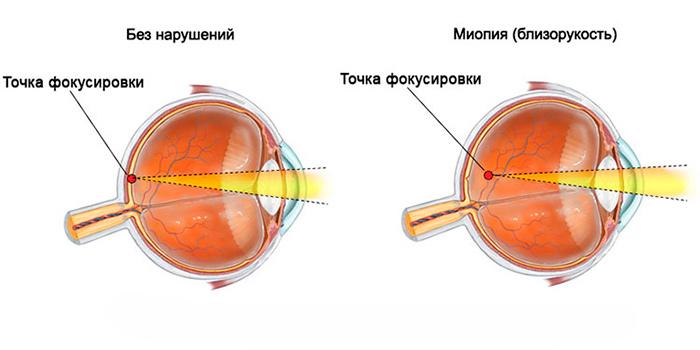 Смешение точки фокусировки глаза при Миопатии
