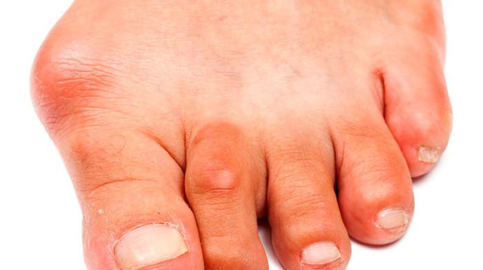 Бурсит большого пальца стопы: причины и лечение болезни суставов