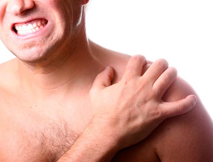 Изображение - Субакромиальный бурсит левого плечевого сустава subakromialnyy-bursit-plechevogo-sustava-700x534