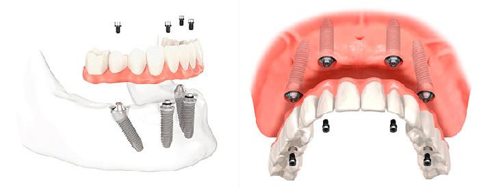 Всего 1 день и все зубы на месте. Все о технологии All-on-4