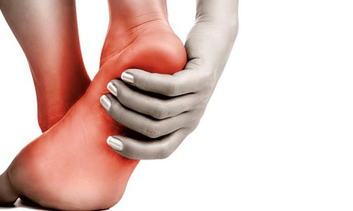 Ахиллобурсит: симптомы и лечение народными средствами