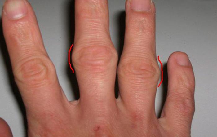 Признаки бурсита пальцев руки